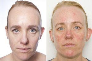 Dormire-con-il-make-up-la-pelle-invecchia-di-10-anni-in-un-mese