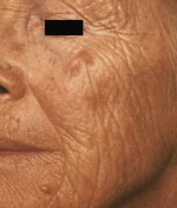 dermatoeliosi-volto-3-255x300