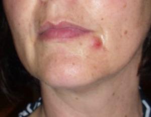 acne 3