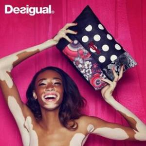 Winnie-Harlow-per-Desigual_image_ini_625x465_downonly - Copia_MGTHUMB-INTERNA